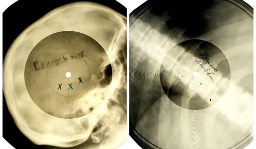 Discos hechos con radiografías en la Rusia comunista